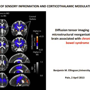 Patients with irritable bowel have cerebral alterations